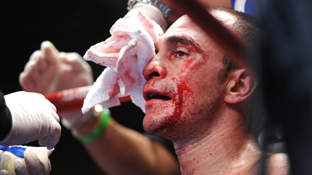 A bloodied Israel Villela returns to his corner to be cleaned up during his fight with Anthony Marsella Jr.